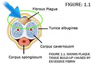 The Peyronie disease