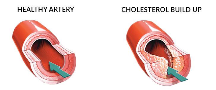 Cholesterol Characteristics