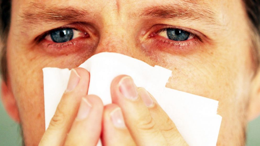 Can Allergies Influence Your Sexual Life?