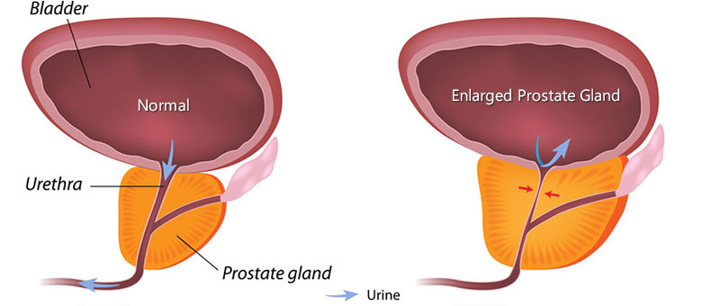The Triple Use Of Cialis In BPH Patients: Erectile Dysfunction, Benign Prostatic Hypertrophy And Hypertension