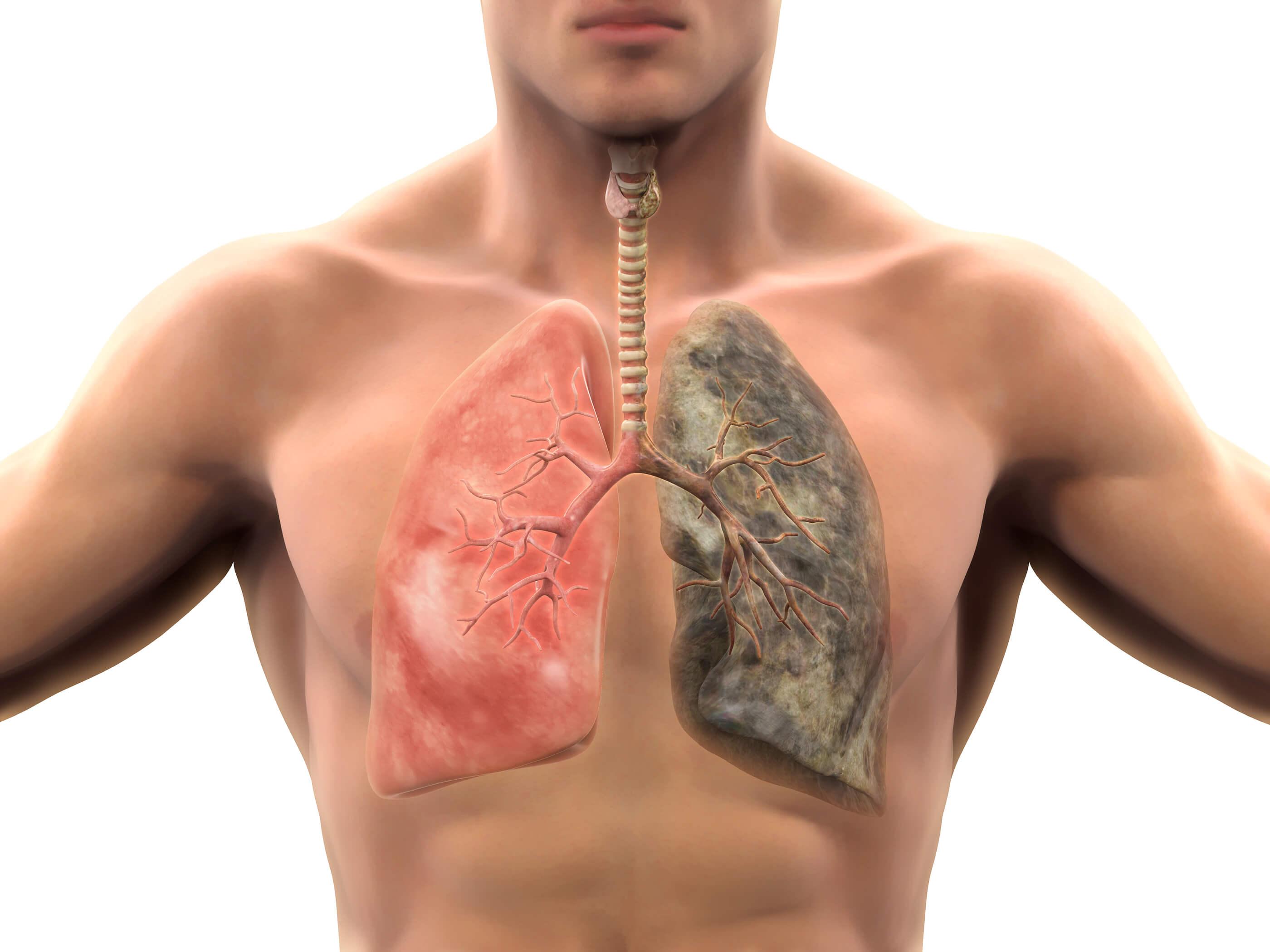 E-cigarettes-vaping-canadian-health